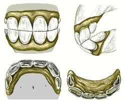 zęby konia - rycina